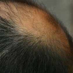 he_hairtonsur_s